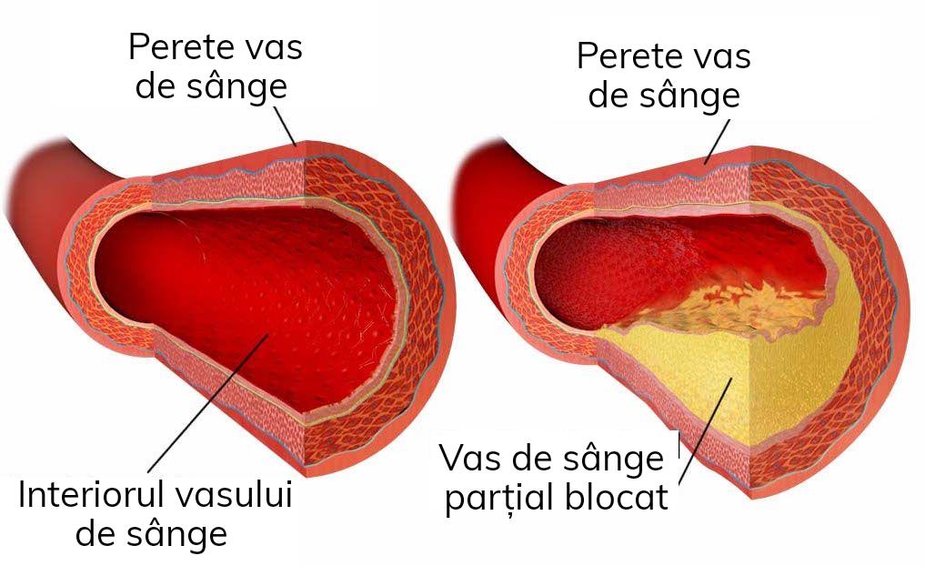 Tot ce trebuie să știi despre colesterol mărit