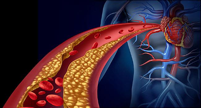 Cum afectează nivelul de colesterol mărit