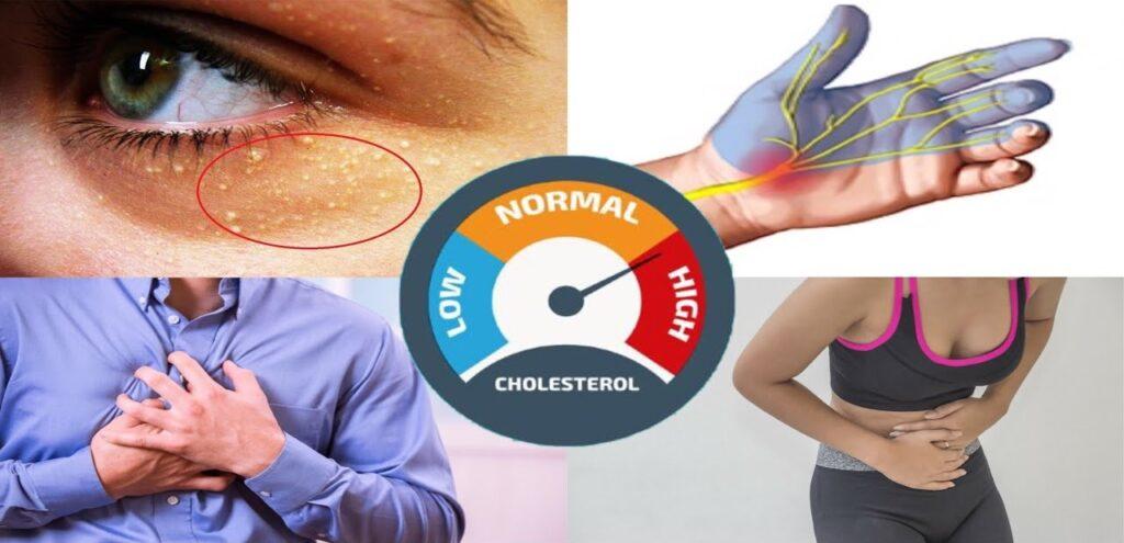 Simptome colesterol mărit