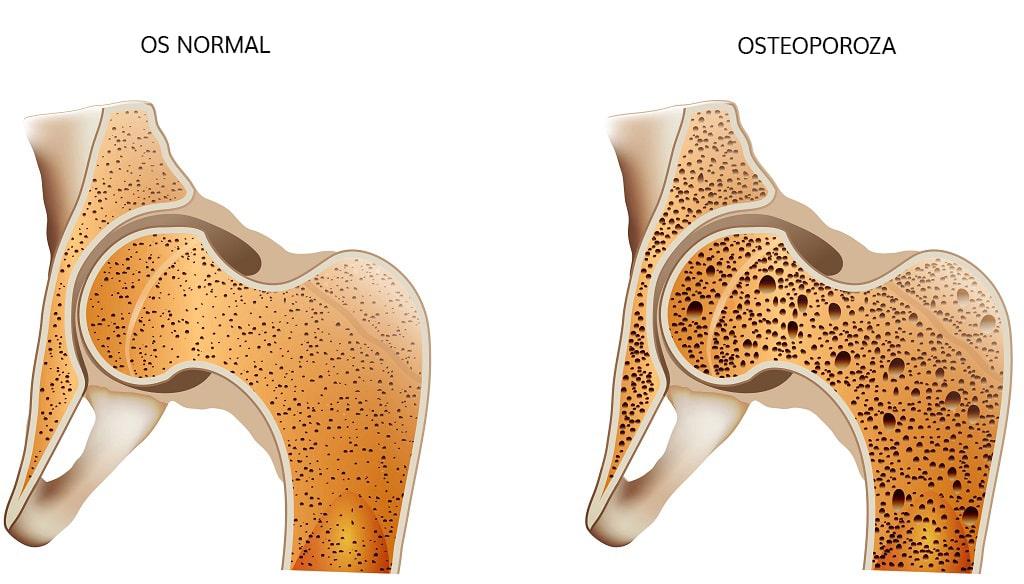 osteoporoza sectiune os